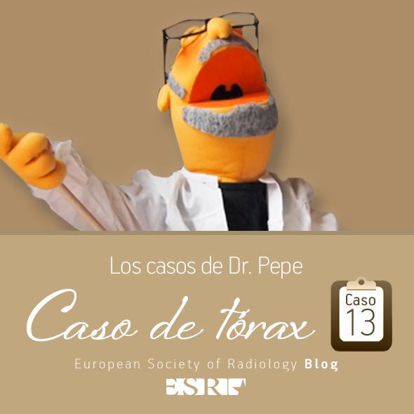 ESP_torax_case_final_caso13