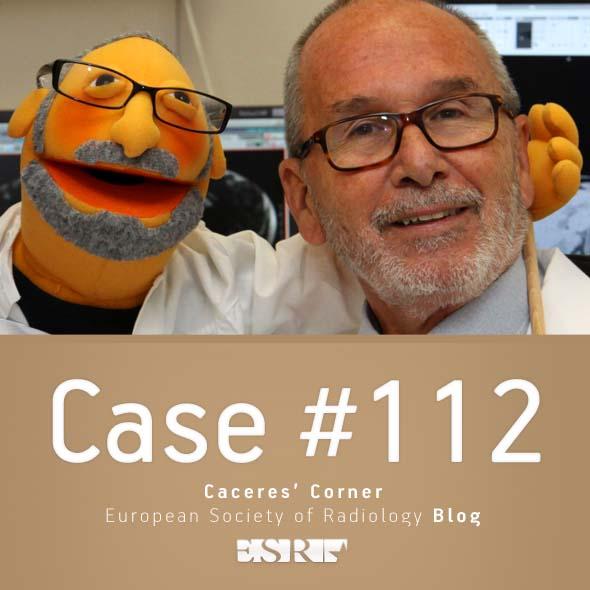 ESR_2015_Blog-CaceresCorner-112