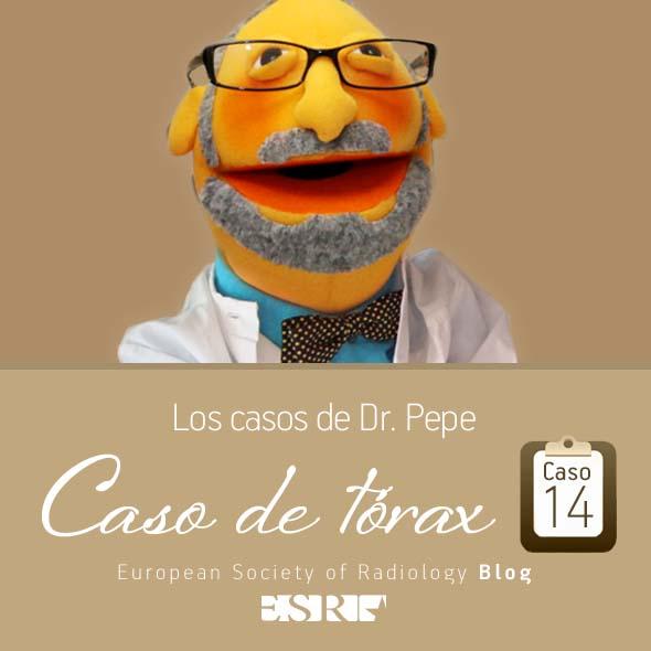 ESP_torax_case_final_caso14