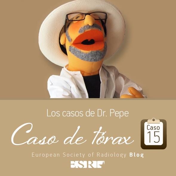 ESP_torax_case_final_caso15