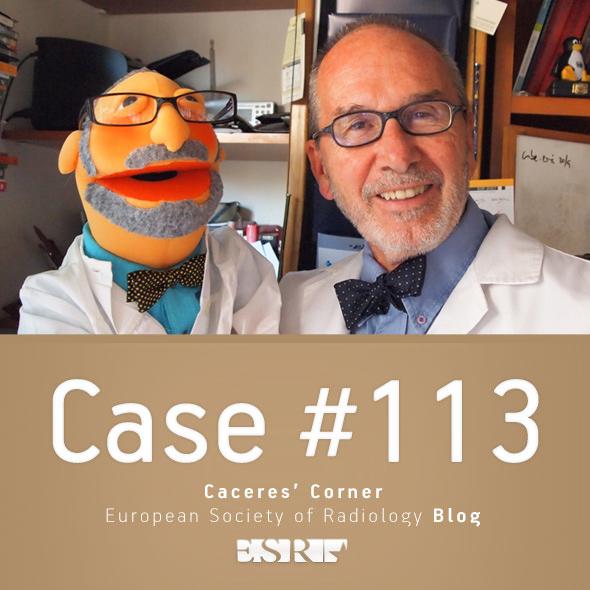 ESR_2015_Blog-CaceresCorner-113 copy