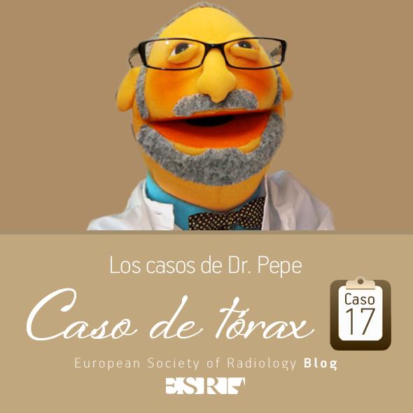 ESP_torax_case_final_caso17