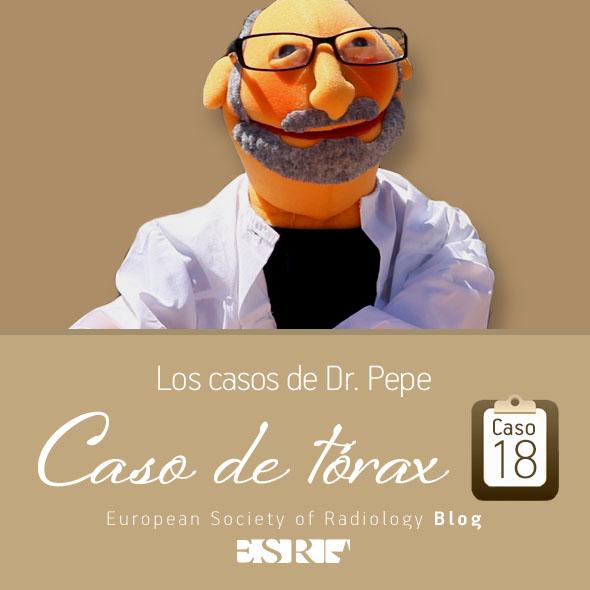 ESP_torax_case_final_caso18