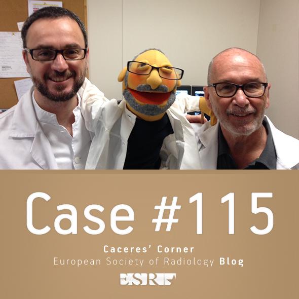 ESR_2015_Blog-CaceresCorner-115