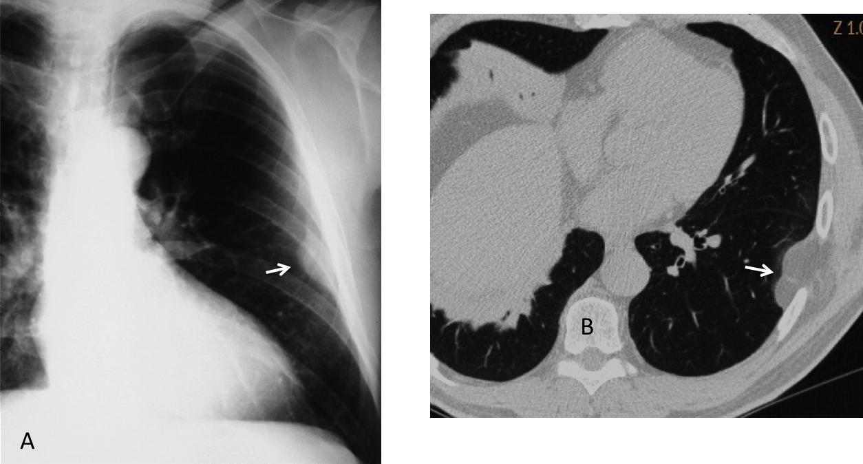 Fig. 4: Varón de 52 años asintomático, en el que se descubrió accidentalmente una lesión extrapulmonar (A, flecha). TC demuestra que la lesión corresponde a grasa parietal (B, flecha).