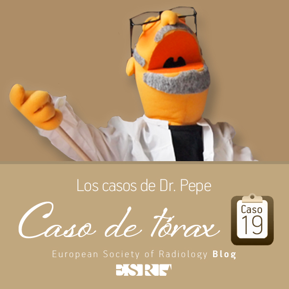 ESP_torax_case_final_caso19