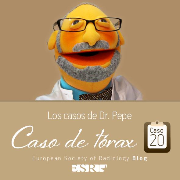 ESP_torax_case_final_caso20