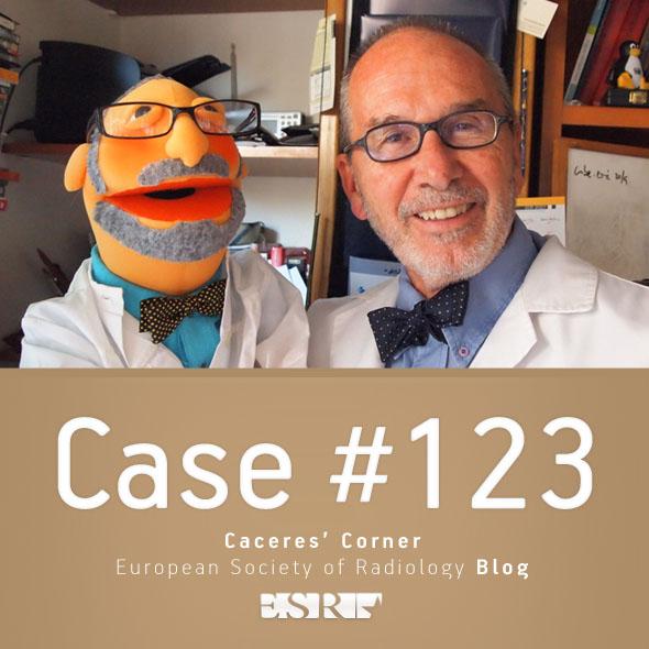 ESR_2015_Blog-CaceresCorner-123