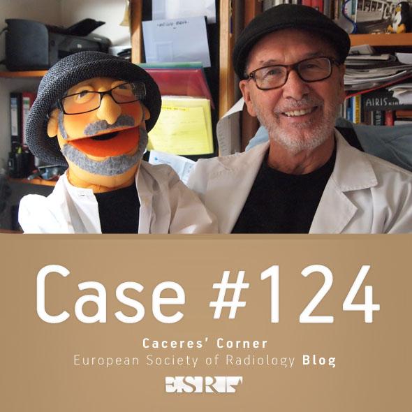 ESR_2015_Blog-CaceresCorner-124