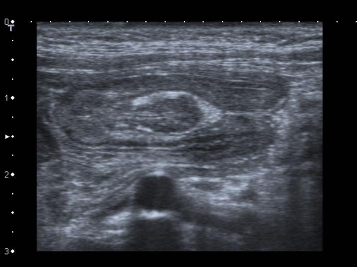 Figure 1a: High-frequency ultrasound allows us to identify pathology with exquisite detail as in this intussuscepted inverted meckel's diverticulum.