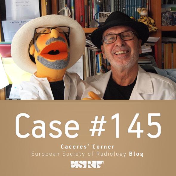 esr_2016_blog-cacerescorner-145