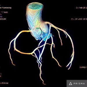 Artistic 3D renderings of coronary CTA